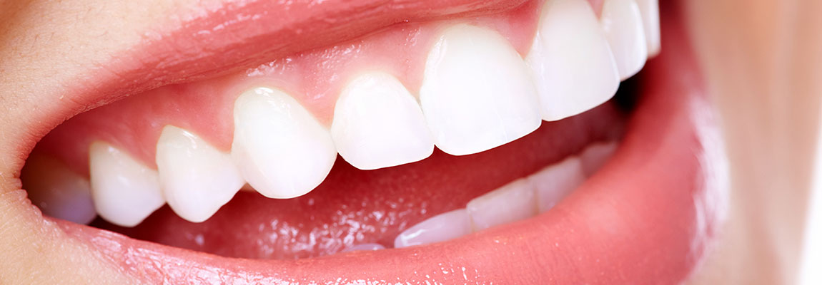 A Dental Filling Is Required When Hole Also Known As Cavity Forms In Tooth The Dentist Will Remove Decay From And Then Fill