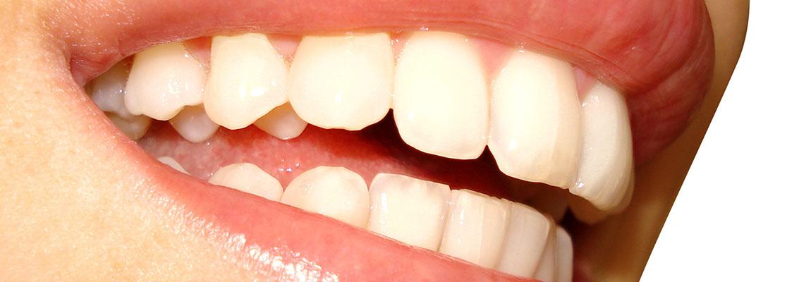 Endodontic-Therapy
