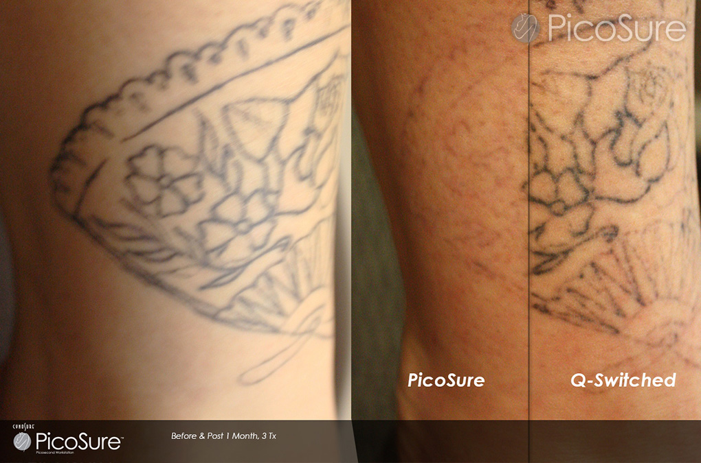 picosure-vs-q-switched-tattoo-removal