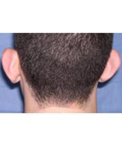 1-Ear-before
