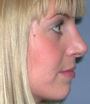 3-Nose-after