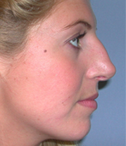 3-Nose-before