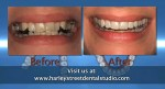 Invisalign orthodontics described by Harley Street Dental