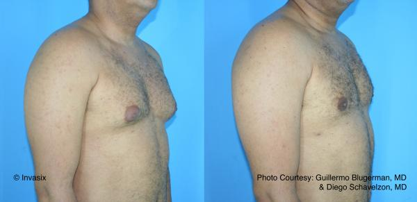 BodyTite for gynaecomastia